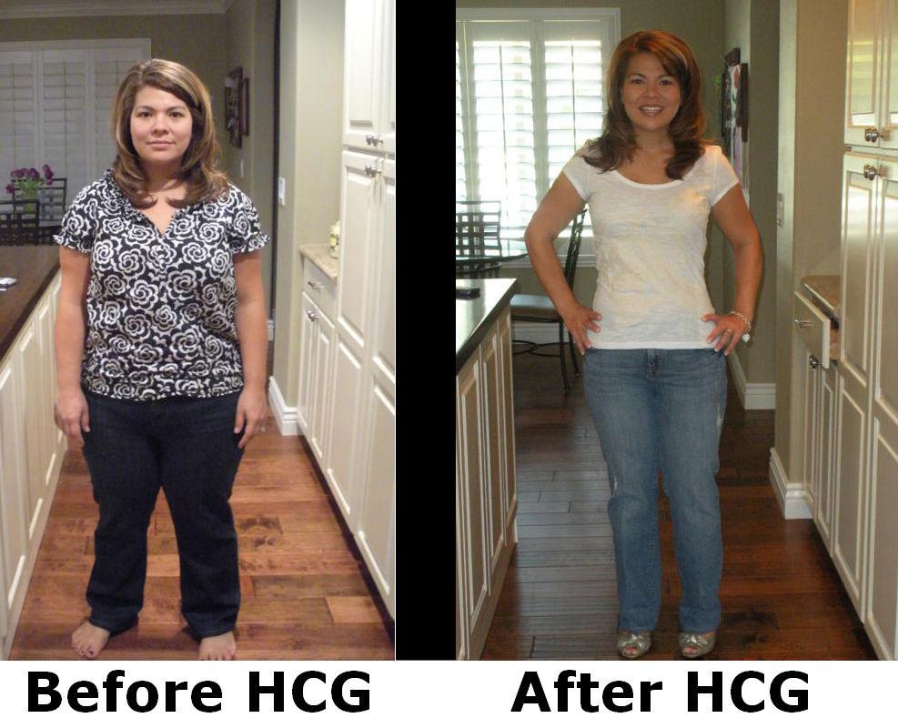 HCG Drops Direct Supplement